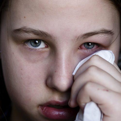 Un 25% de la población sufre conjuntivitis alérgica