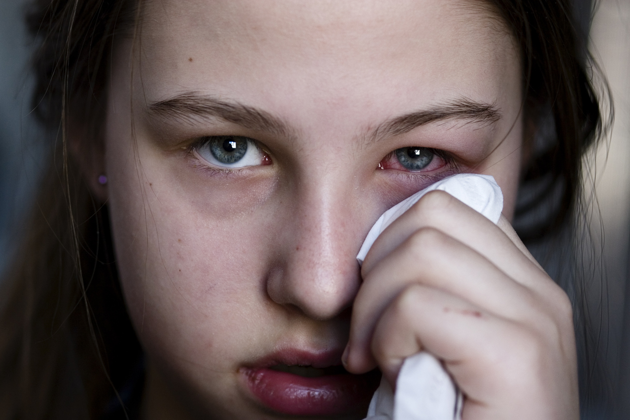 Un 25% de la población sufre conjuntivitis alérgica El Periòdic d'Ontinyent